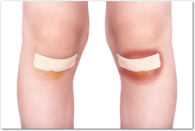 子どもの両膝の怪我に絆創膏が貼ってある様子