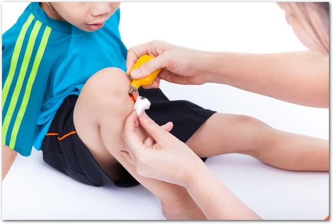 男の子の膝にできた擦り傷を消毒している様子